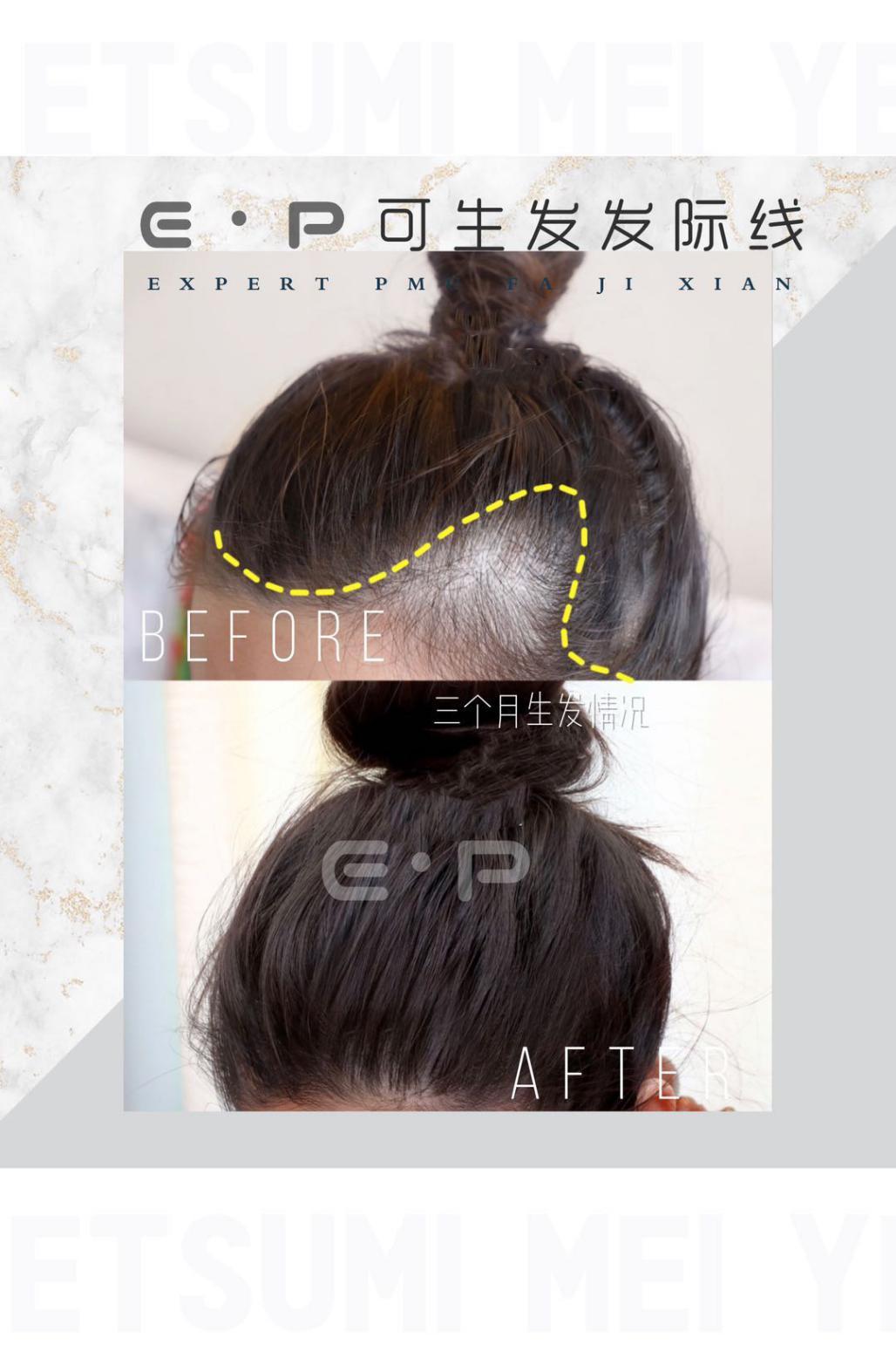 揭秘EP细胞再生发际线EP可生发发际线原理毛囊激活头顶加密生发靠谱吗